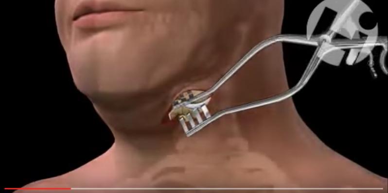 Cirurgia da Coluna Cervical