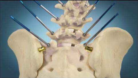 Correção cirúrgica da escoliose
