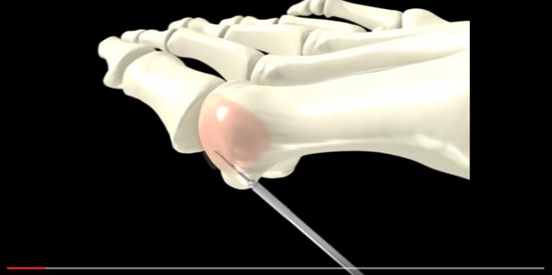 Correção cirúrgica da joanete